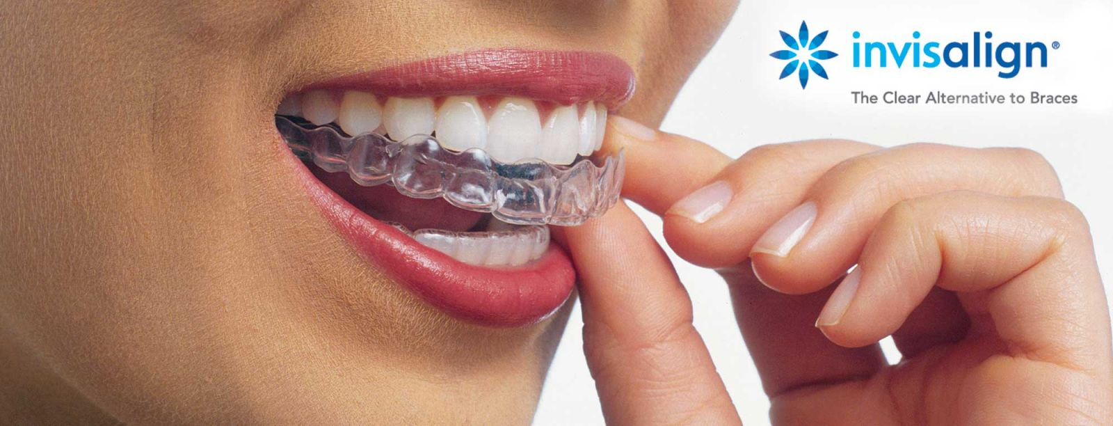Invisalign Braces in Independence, MO