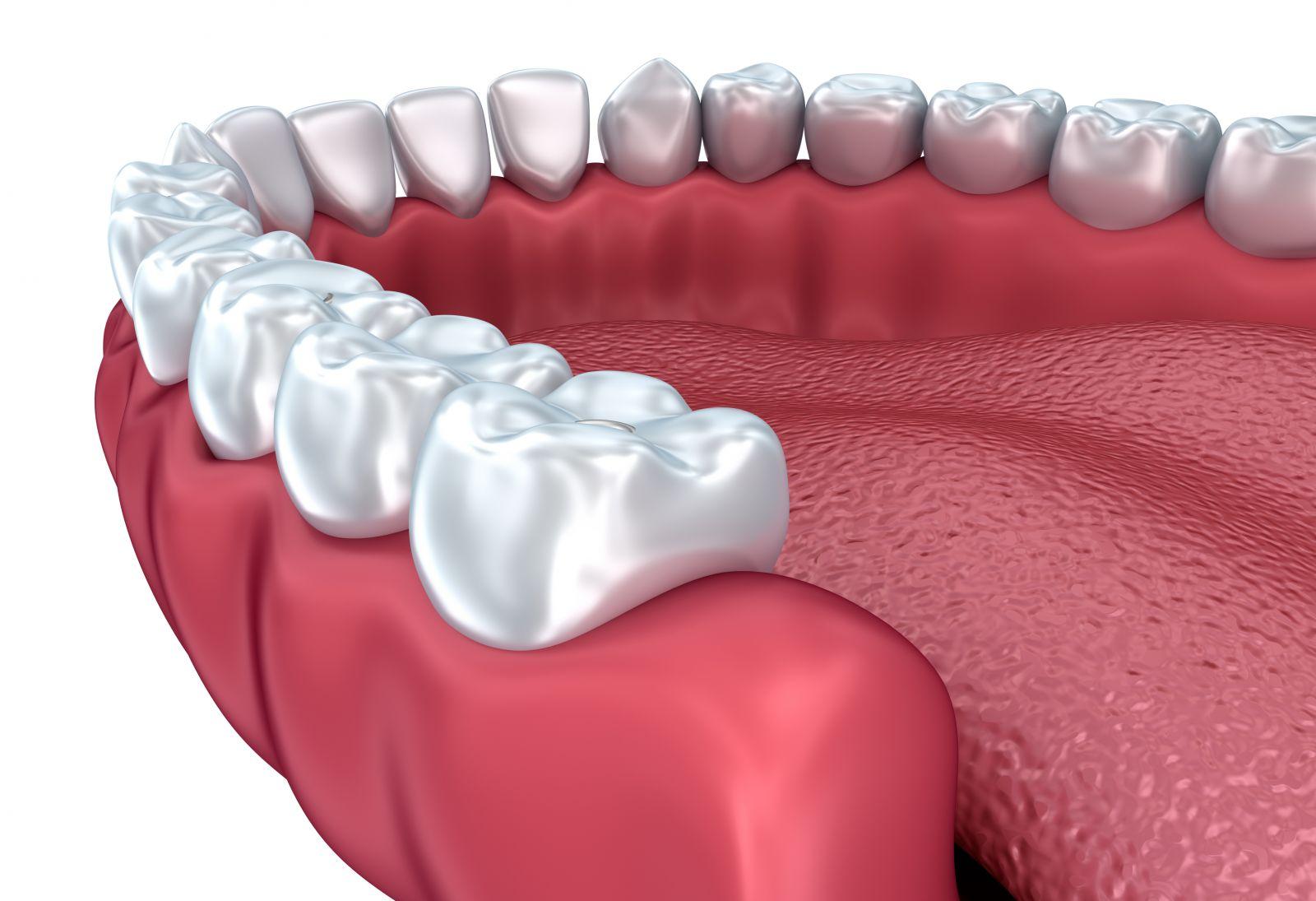 iTero Dental Imaging