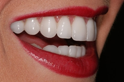 Porcelain Veneers Independence, Blue Springs, Lee's Summit MO
